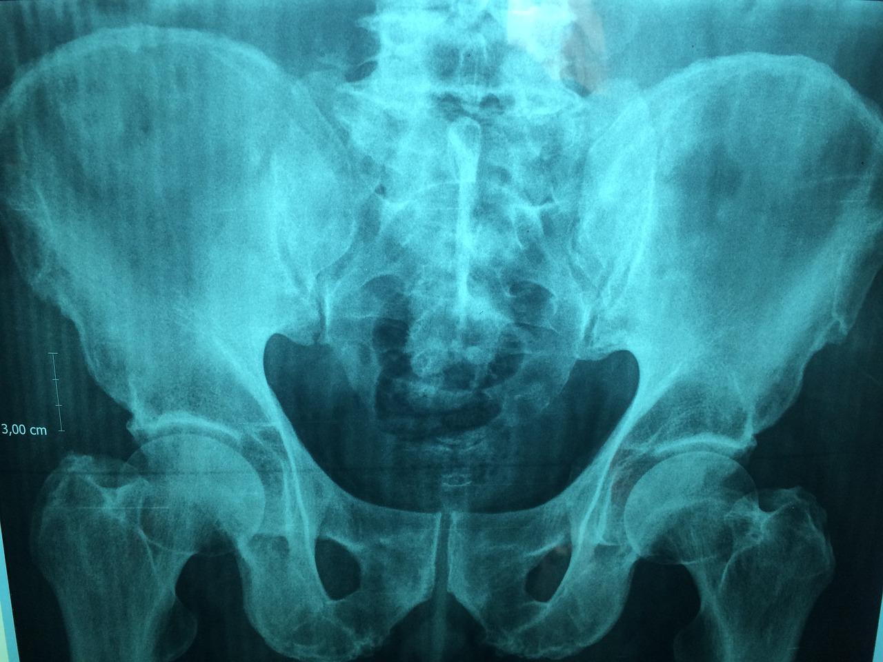 X-Ray Radiology Practice In Johannesburg