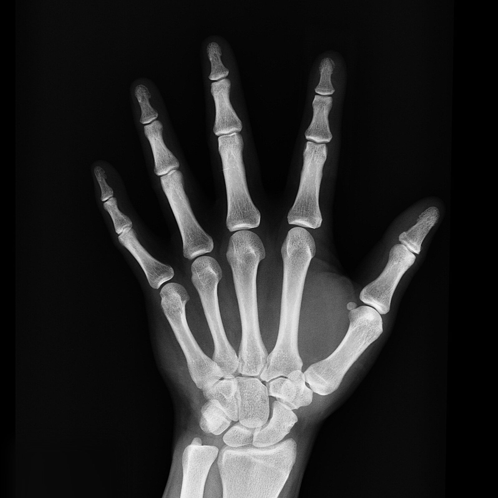 X-Ray Picture In Johannesburg